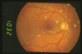 Microangiopatia-da-HIV 01