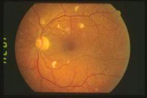 Microangiopatia-da-HIV 02