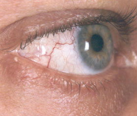 melanoma-congiuntivale 04